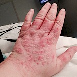 Having chronic urticaria is awful, I would never wish this for anyone not even my enemy. Xolair has saved my way of life and has helped me enjoy life again. I have attached a photo of my hands before they are hive free as of today because of xolair!